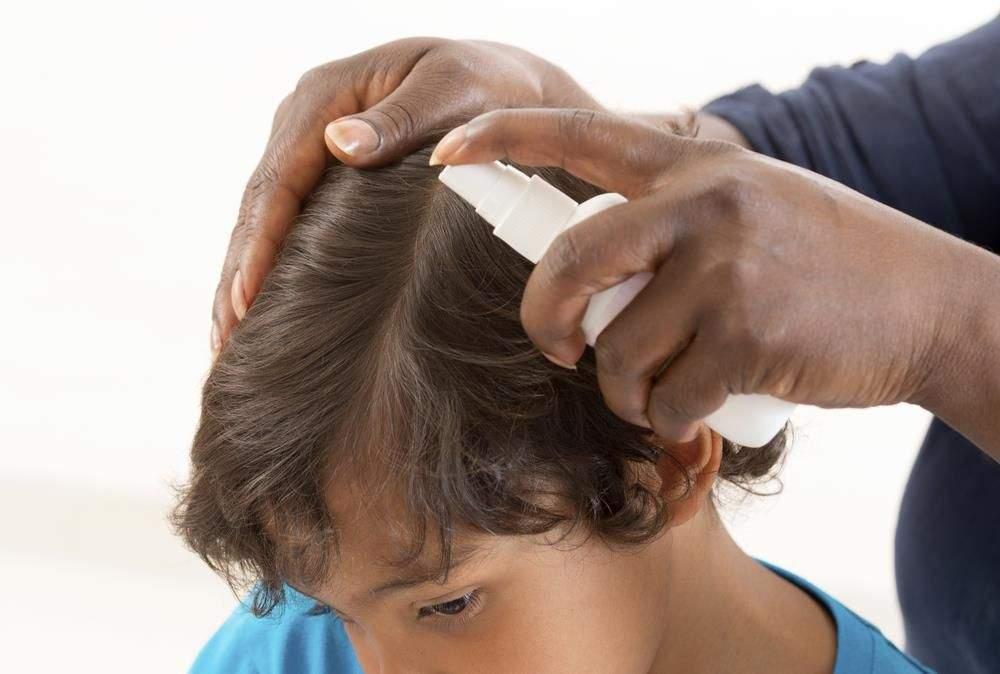 Do Dark Individuals Get Lice?