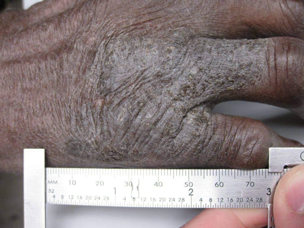 amyloidosis lichen home remedies