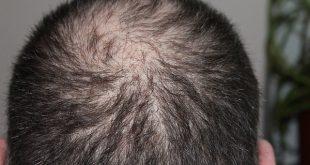 hair-248049_640