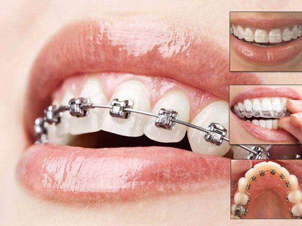 6 Key Things To Know Before Getting Dental Braces