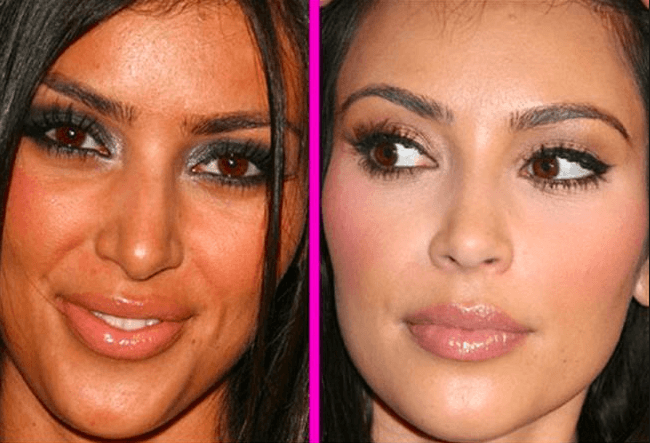 Rhinoplasty in Montreal