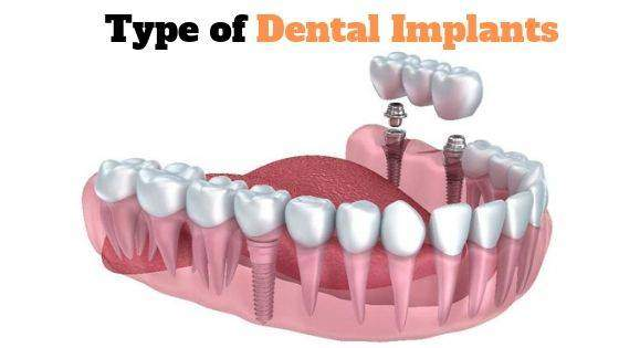 Thinking for Dental Implants? Know 3 Types of Dental Implant