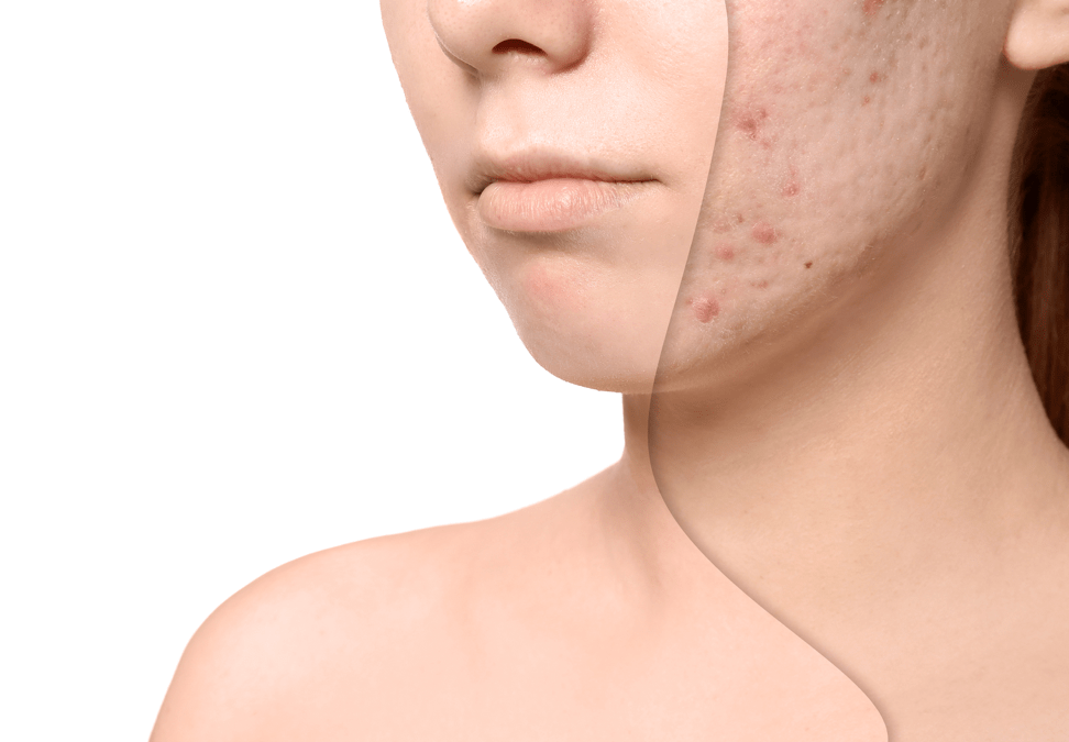 7 Treatments For Your Acne Scar Removals You Should Know